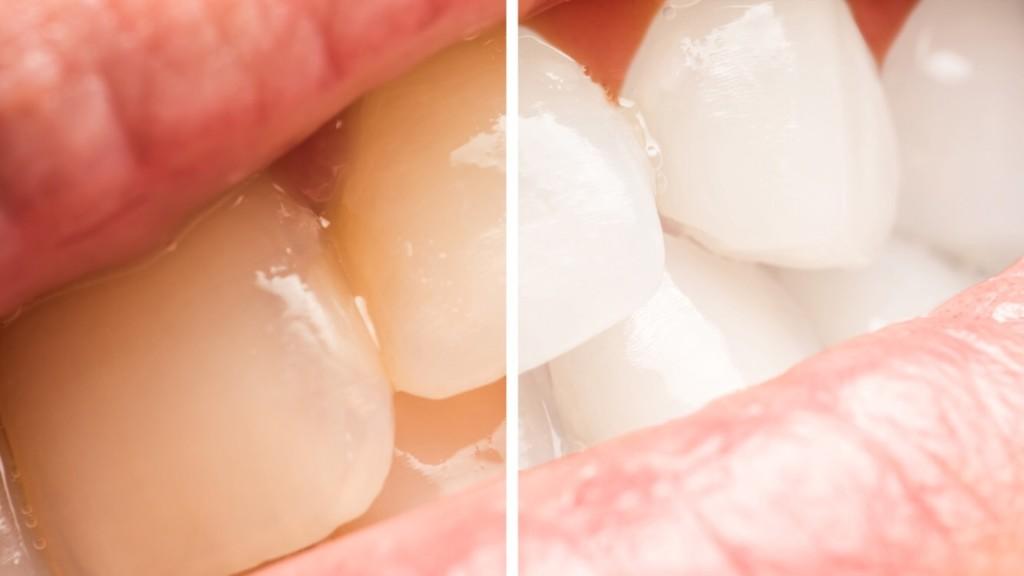 teeth-whitening-1024x576