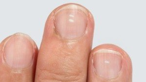 fingernail health