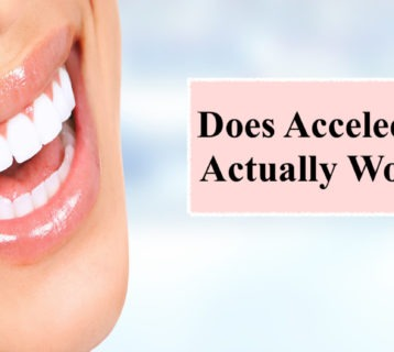 Does Acceledent Actually Work? - ArticleCity.com